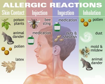 Four Common Allergic ReactionsFour Common Allergic Reactions